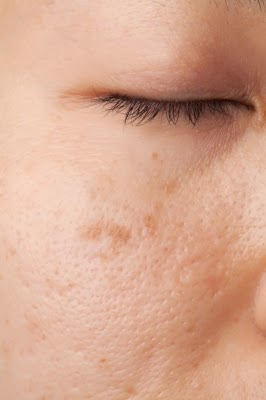 Brown facial spot