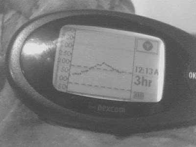 Picture of Dexcom three hour view with previous few readings missing and an out of range signal