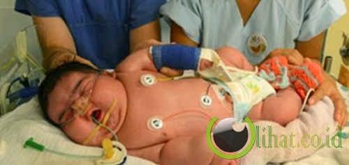 Bayi Yang Lahir Paling Gemuk di Dunia