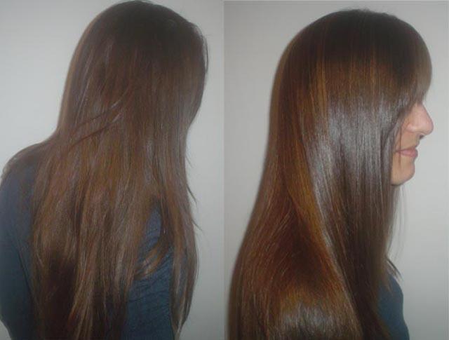 El ácido de nicotina para los cabellos a la alopecia