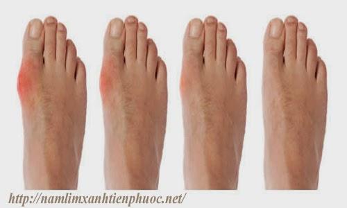 Bệnh gout sẽ gây ra sưng tấy ở khớp ngón chân cái (ảnh minh họa)