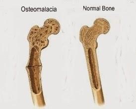 disease diary: osteomalacia- skeletal system, Skeleton