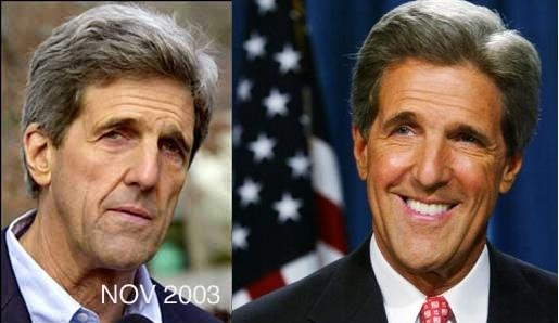 The drudge report claimed that kerry got botox injections as he doesn