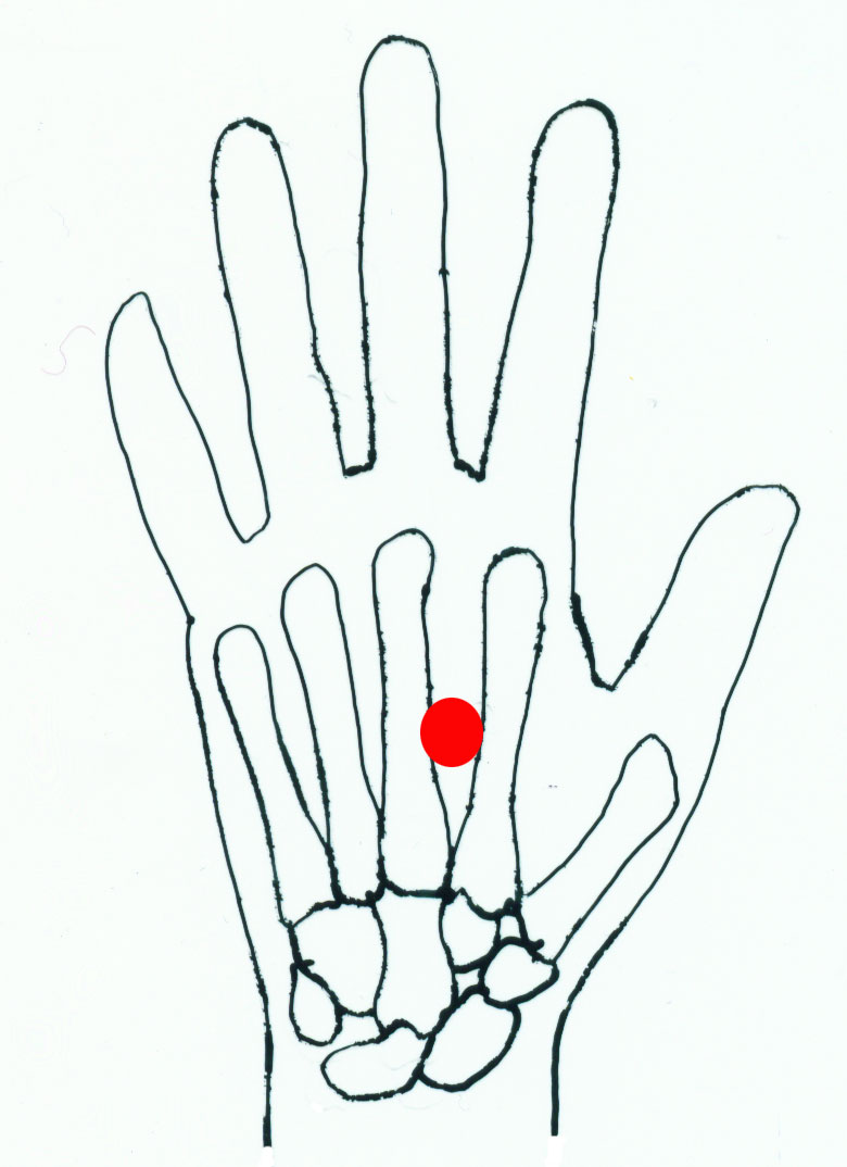 Point LAO GONG - one of the most important points of acupuncture 11