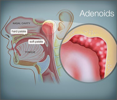 adenitis specialist treatment hospital chennai, velachery