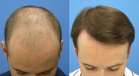 http://www.sevanahospital.org/hair-transplantation/