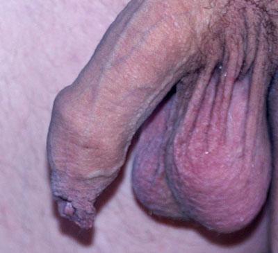 Beschnittener und unbeschnittener penis