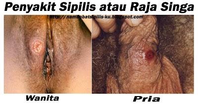 cara mengobati penyakit sifilis/raja singa