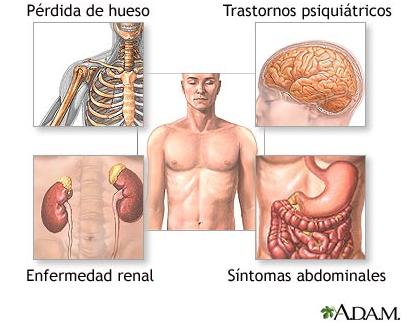 Sistema Endocrino: Glándula paratiroides concepto, función ...