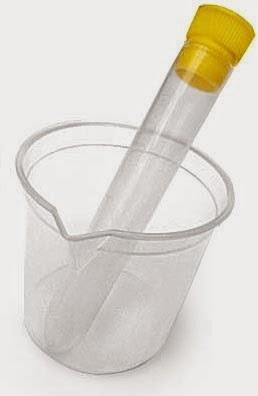 O que sao piocitos no exame de urina