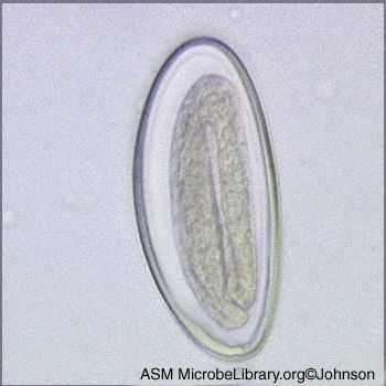Gambar gambar oxyuris vermicularis dari muali telur sampai dewasa