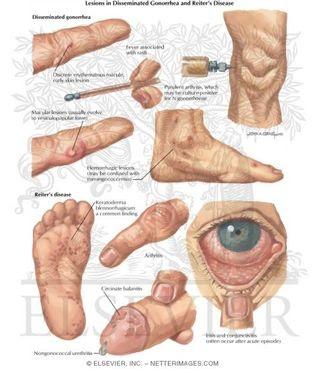 Image Apakah Obat Penyakit Sipilis