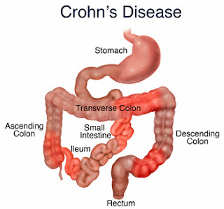 Crohn's Disease Causes, Symptoms, Diagnosis And Treatment
