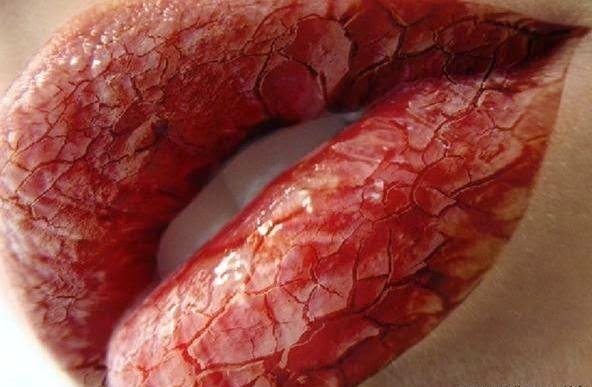 Obat Bibir Pecah-pecah dan Kering