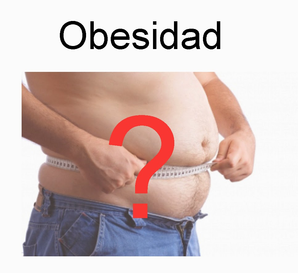 Las causas de la obesidad son desconocidas