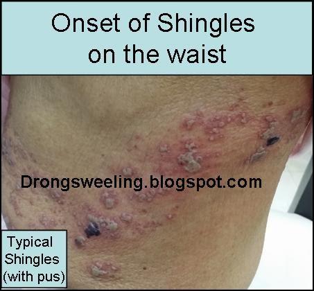 Tcm News Tcm Doctor Treatment For Shingles Postherpetic