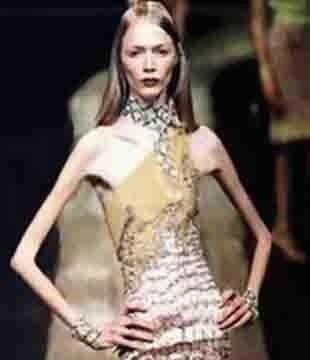 Anorexic model Isabelle Caros death sparks call for curvy
