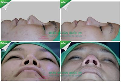 Mũi bị vẹo thì Sửa mũi vẹo như thế nào thưa bác sĩ 2