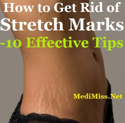 How to Get Rid of Stretch Marks - 10 Effective Tips