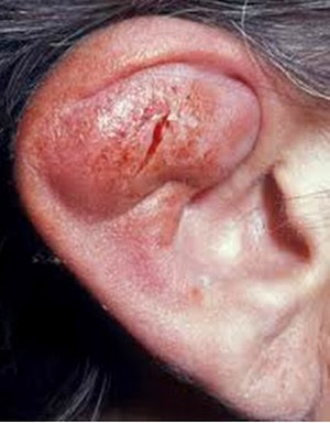 how to fix an ear infection from a piercing