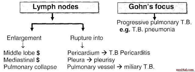 primary-tuberculosis