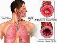 Obat Bronkitis Alami