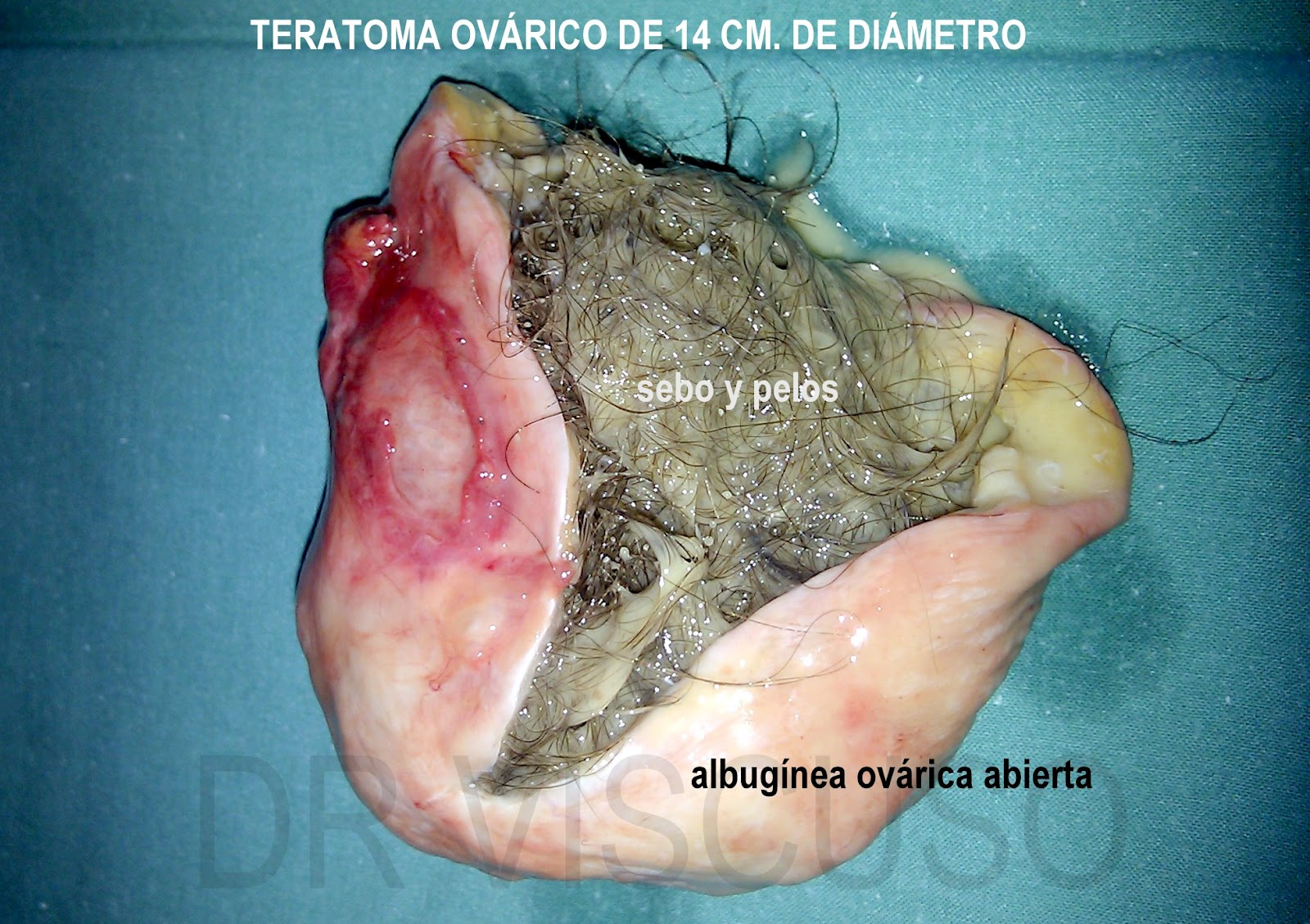Teratoma Ovarico
