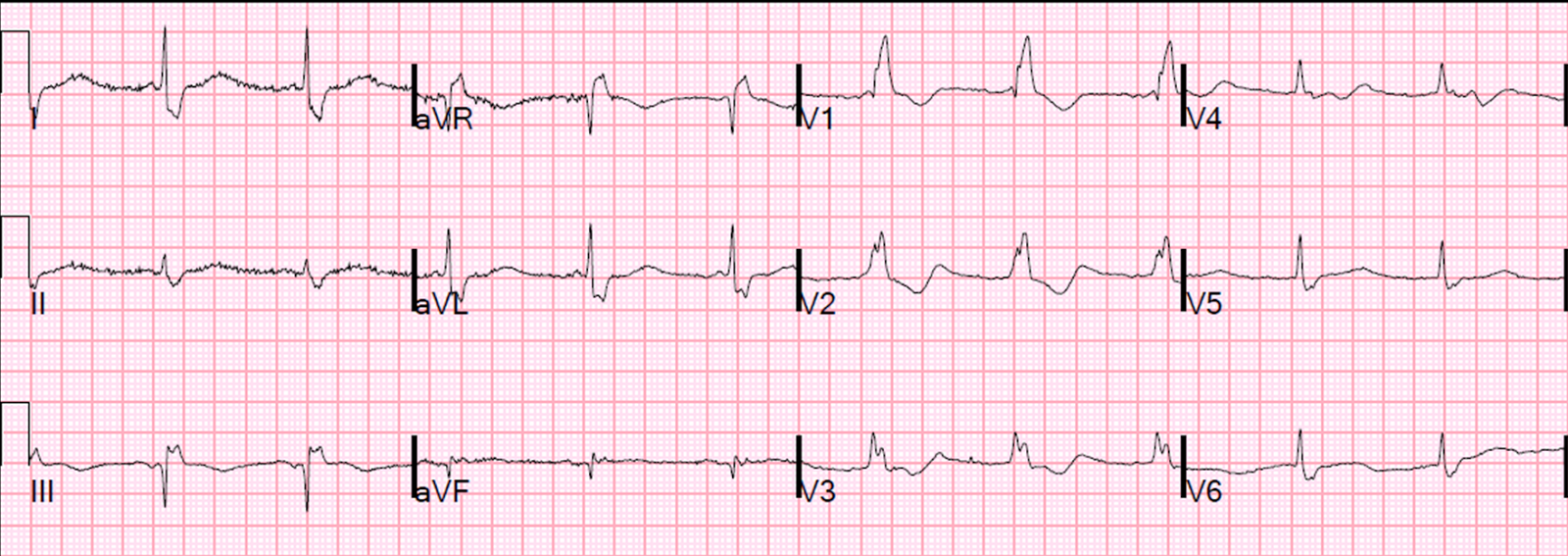 Dr smiths ecg blog pseudostemi and true st elevation in right pseudostemi and true st elevation in right bundle branch block rbbb dont miss case 4 at the bottom ccuart Gallery