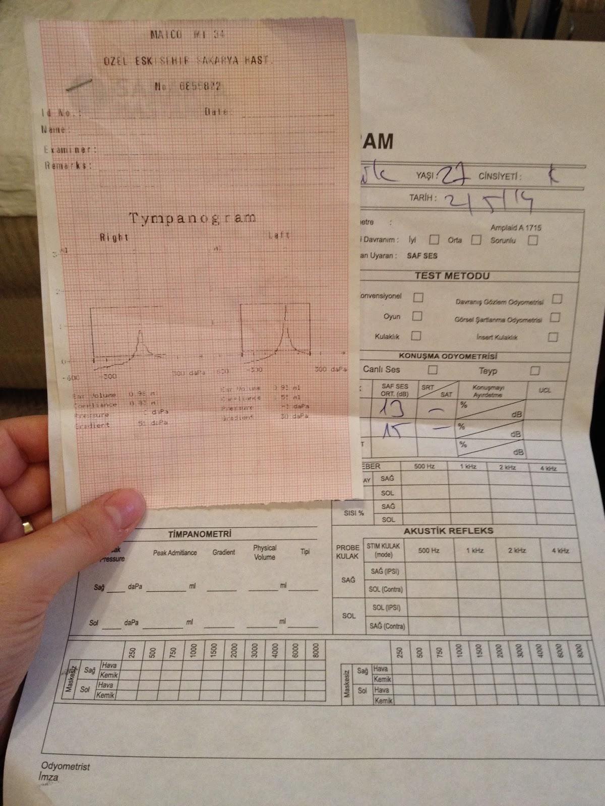 ses ölçüm testi