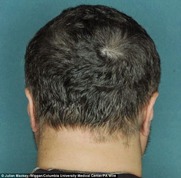 صورة لرأس مريض بعد العلاج