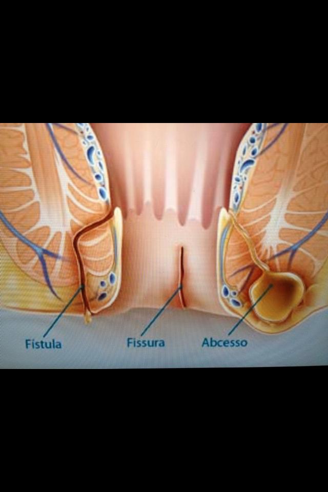 Anal fistula laser