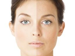 Hyperpigmentation_Treatment