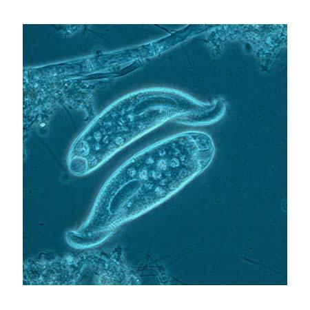 phylum protozoa Amazonin - buy protozoa (zoology phylum - 1 code no z5) 11/e (pb) book  online at best prices in india on amazonin read protozoa (zoology phylum - 1.