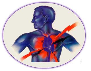 Gb. Penyebab Serangan Jantung Mendadak & Penyakit Jantung Iskemik