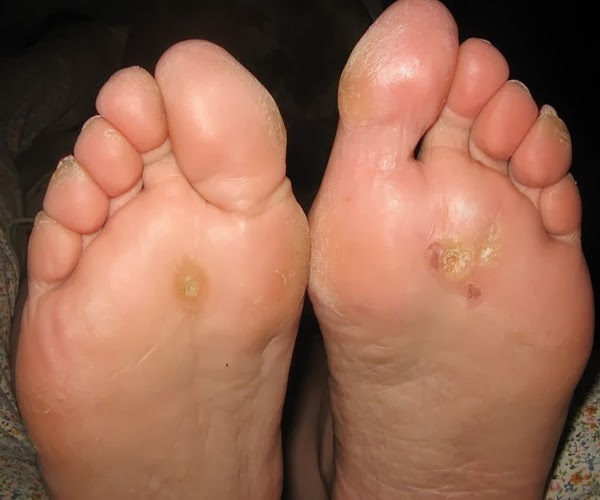 Warts Common Warts Symptoms Causes Treatment What Is ...