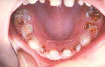 Obat Sakit Gigi yang Ampuh untuk Gigi Berlubang Resep Dokter dan Alami