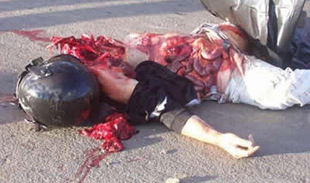 Gambar Korban Kecelakaan