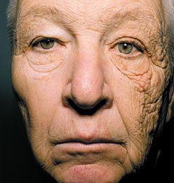 Dermatoheliosis unilateral