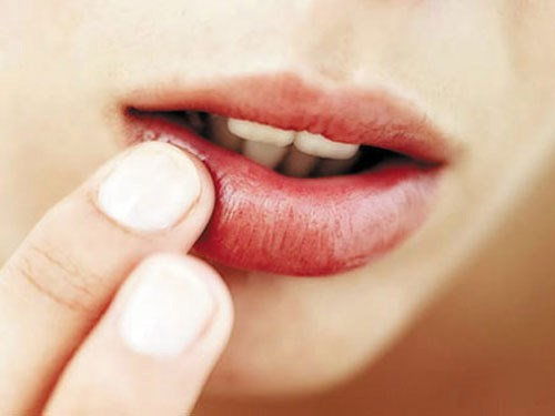 Mẹo làm cho môi không bị khô nẻ vào mùa đông