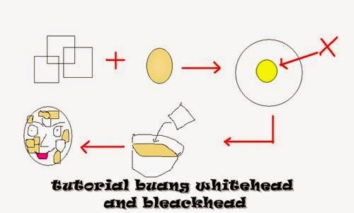 tips menghilangkan whitehead dan blackhead