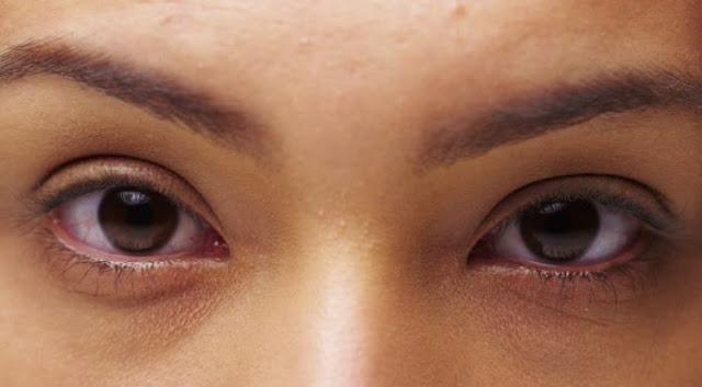 Obat Mata Bengkak Dengan Bahan Alami