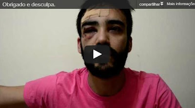 André Baliera, estudante da USP espancado por ser gay, faz desabafo emocionado