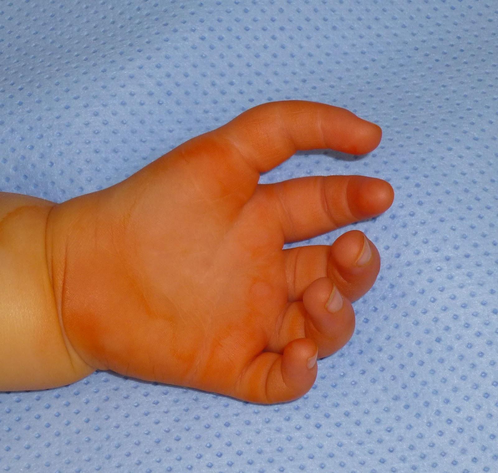 5 Finger Hand