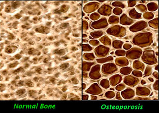 Osteoporosis Causes, Symptoms, Diagnosis, Treatment, Prevention