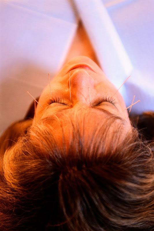 Tratamiento con acupuntura