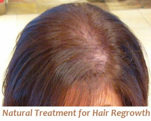 How To Regrow Hair Naturally Using Home Remedies