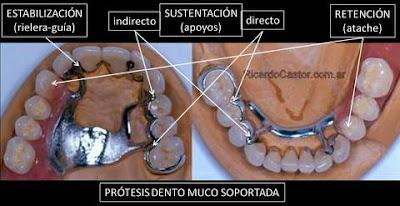 protesis fija dental combinada con protesis removible metalica