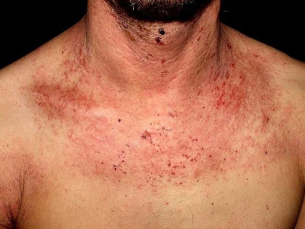 qu empeora la dermatitis at pica medicina actual