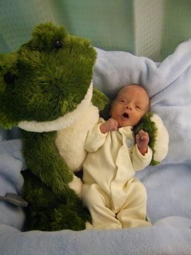 Primordial Dwarfism Baby Primordial Dwarfism Ba...