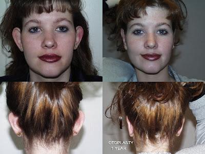 otoplasti kepçe kulak ameliyatı